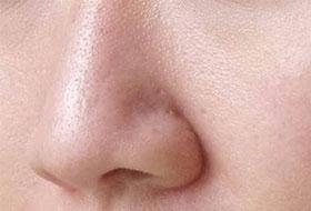 улучшить-текстуру-пористой-кожи
